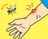 蚊に虫さされ