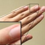 指のささくれを治す方法と予防まとめ