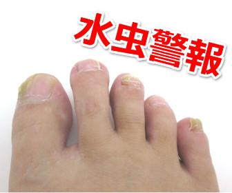 足の指の水虫